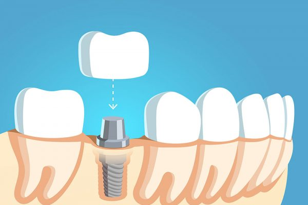 illustration of a crown being placed over a dental implant