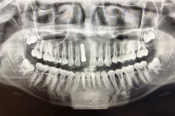 Dental-Implant-X-Ray